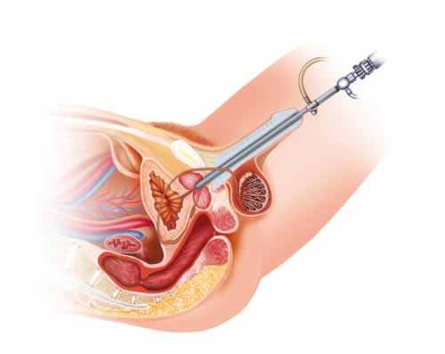 Image of Cystoscopy