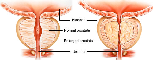 Image graphic of enlarged prostate