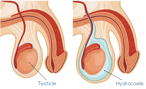 Image showing a normal scrotum and a hydrocoele, which is a collection of fluid around the testicle.