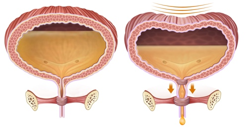 Image showing leaking of urine from the bladder due to stress urinary incontinence.