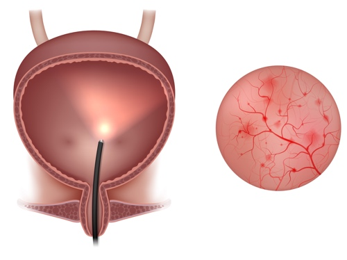 Image showing inflammation of the wall of the bladder, as seen on cystoscopy.