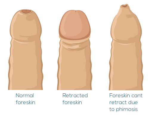 Image showing a normal foreskin, a normal foreskin retracted to expose the head of the penis, and a foreskin which can not be retracted due to phimosis.