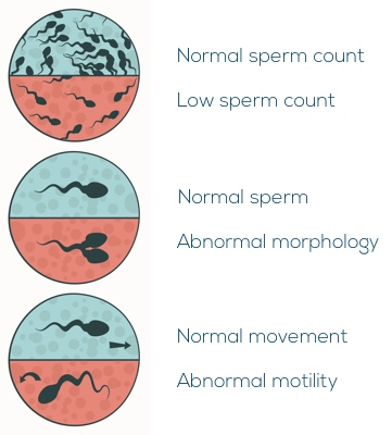 Image showing sperm abnormalities including low sperm count, abnormal sperm morphology, and abnormal sperm motility.
