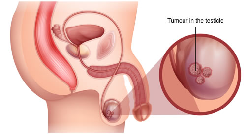 Image graphic of testicular cancer