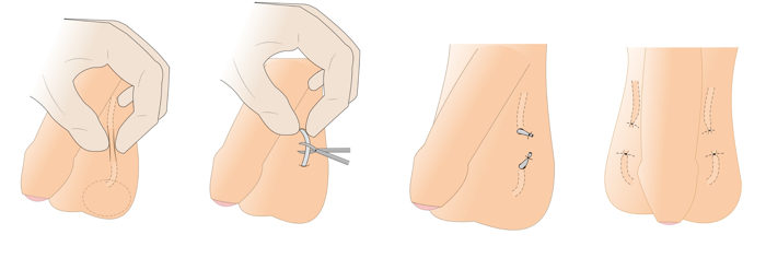 Image showing a step by step guide process to performing a vasectomy. The vas is grasped, delivered through a skin incision, and a segment of vas is removed.