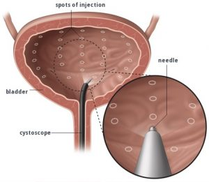 An image showing injection of the bladder with Botox via cystoscopy.